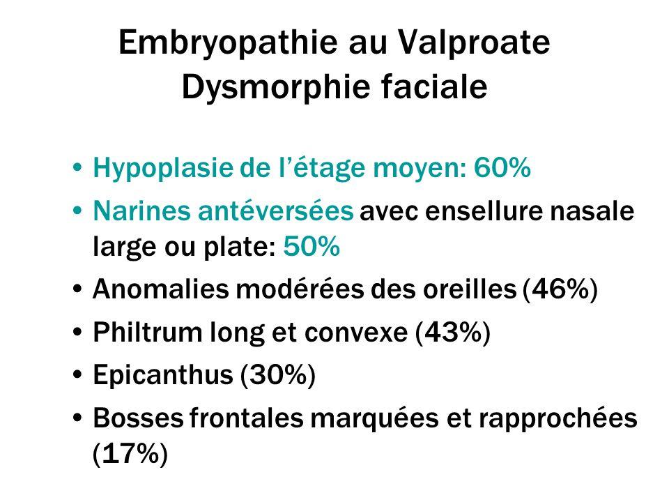 Embryopathie au Valproate Dysmorphie faciale