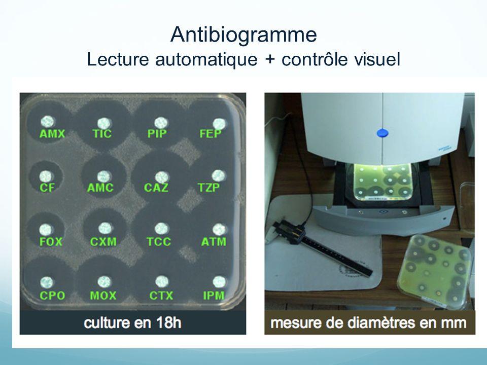 Lecture automatique + contrôle visuel