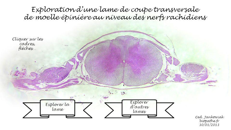 Exploration d une lame de coupe transversale ppt video - Coupe transversale de moelle epiniere ...