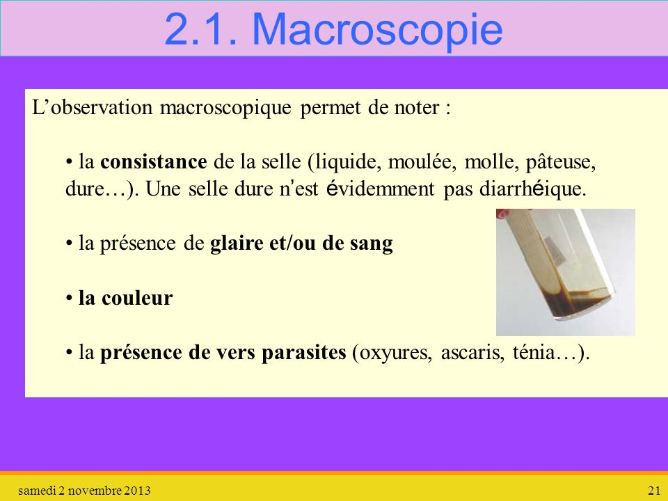 2.1. Macroscopie L'observation macroscopique permet de noter :