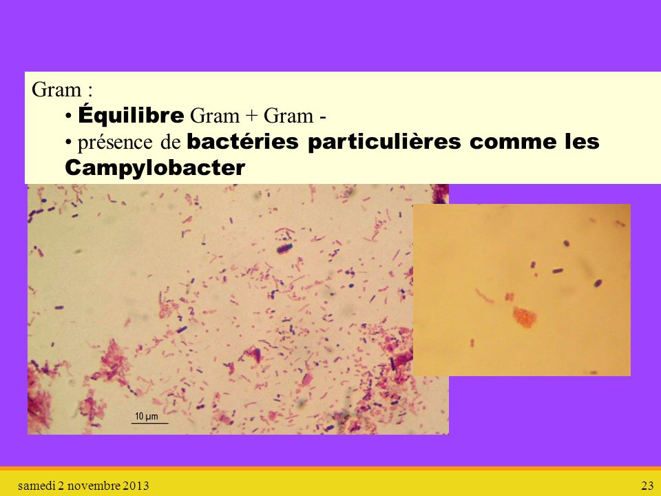 présence de bactéries particulières comme les Campylobacter