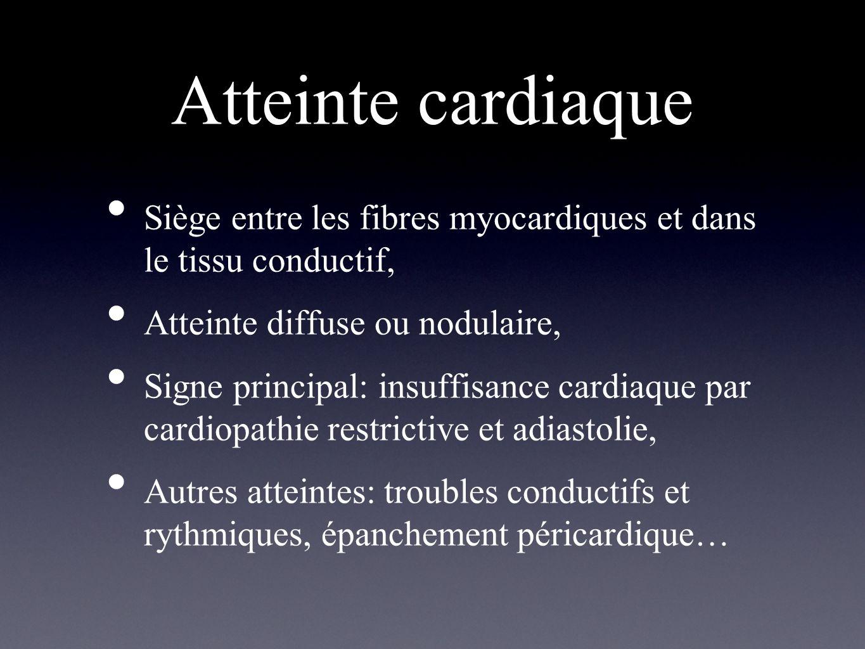 Atteinte cardiaque Siège entre les fibres myocardiques et dans le tissu conductif, Atteinte diffuse ou nodulaire,