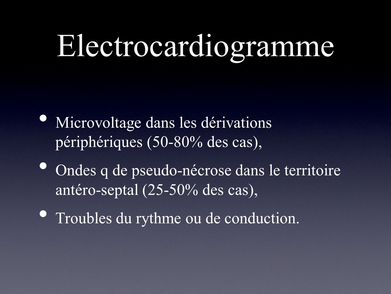 Electrocardiogramme Microvoltage dans les dérivations périphériques (50-80% des cas),