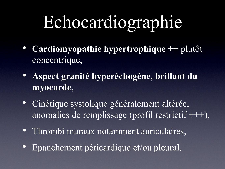 Echocardiographie Cardiomyopathie hypertrophique ++ plutôt concentrique, Aspect granité hyperéchogène, brillant du myocarde,