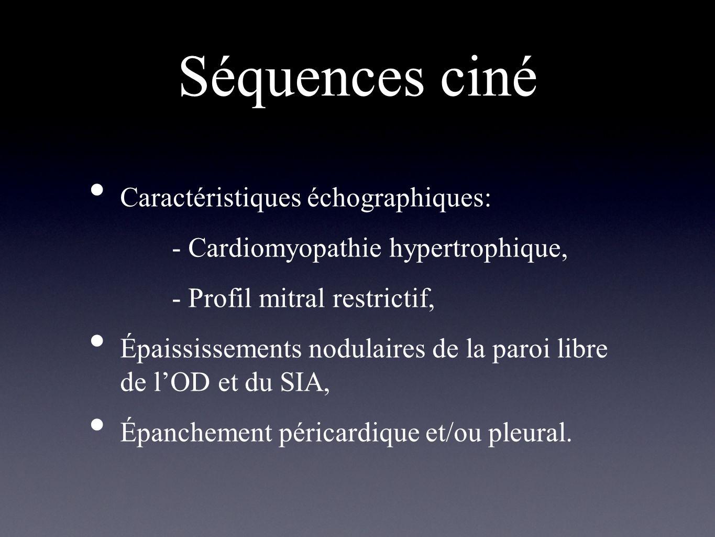 Séquences ciné Caractéristiques échographiques:
