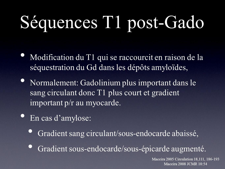 Séquences T1 post-Gado Modification du T1 qui se raccourcit en raison de la séquestration du Gd dans les dépôts amyloïdes,