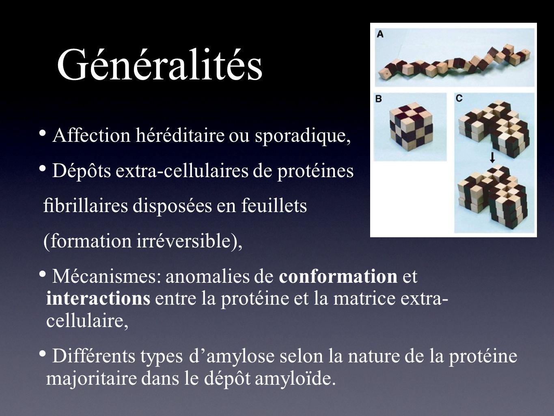 Généralités Affection héréditaire ou sporadique,