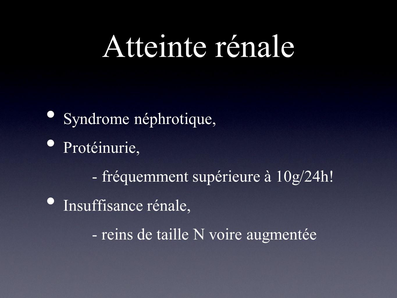 Atteinte rénale Syndrome néphrotique, Protéinurie,