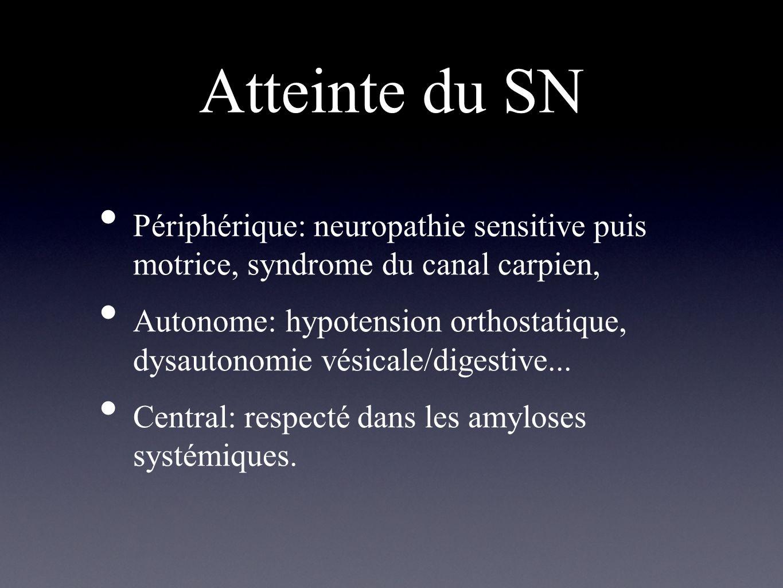 Atteinte du SN Périphérique: neuropathie sensitive puis motrice, syndrome du canal carpien,