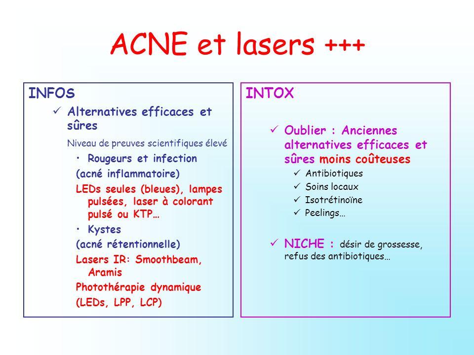 ACNE et lasers +++ INFOS INTOX Alternatives efficaces et sûres