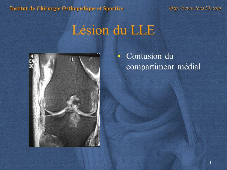 Lésion du LLE Contusion du compartiment médial
