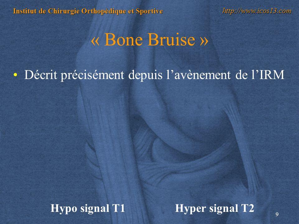 « Bone Bruise » Décrit précisément depuis l'avènement de l'IRM