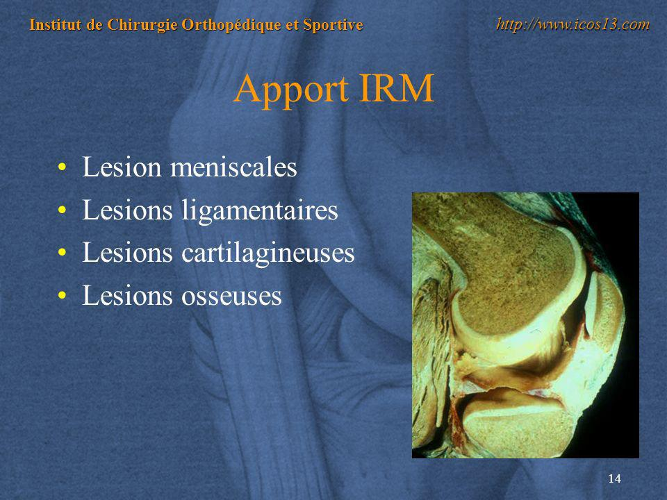Apport IRM Lesion meniscales Lesions ligamentaires