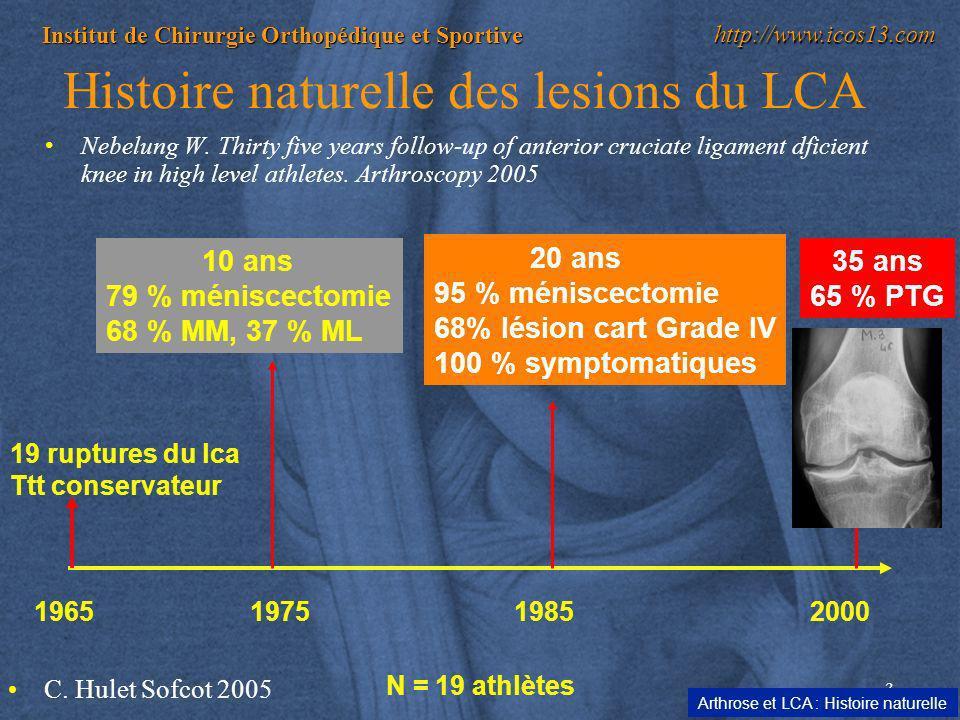 Histoire naturelle des lesions du LCA