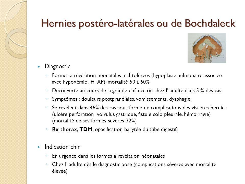 Hernies postéro-latérales ou de Bochdaleck
