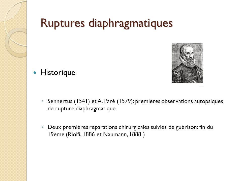 Ruptures diaphragmatiques