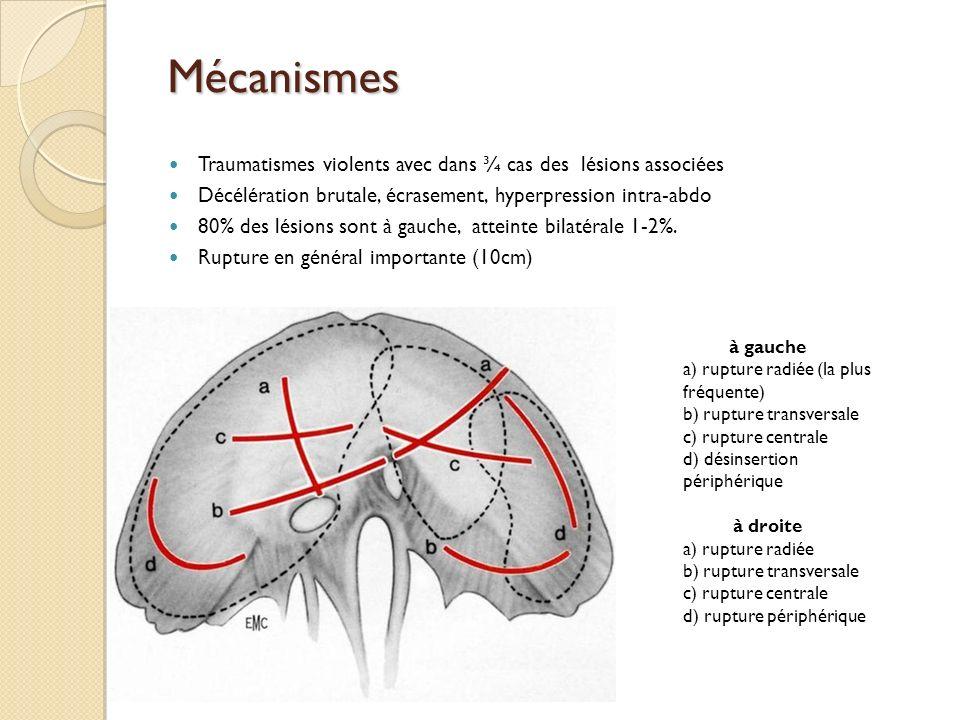 Mécanismes Traumatismes violents avec dans ¾ cas des lésions associées