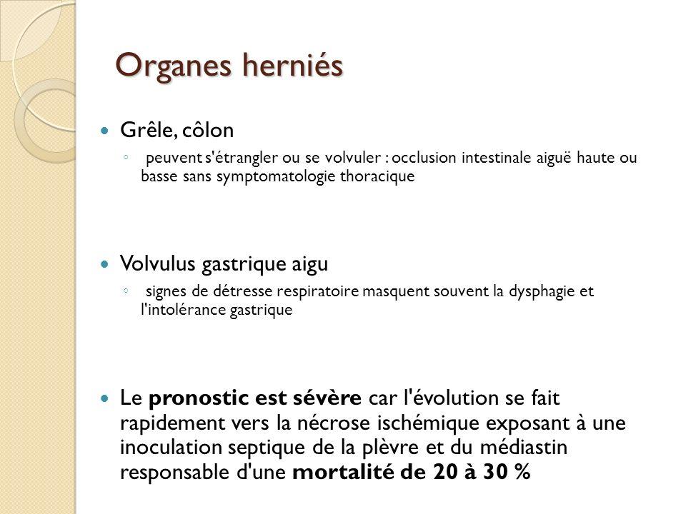 Organes herniés Grêle, côlon Volvulus gastrique aigu