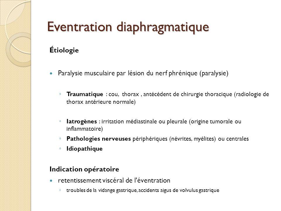 Eventration diaphragmatique