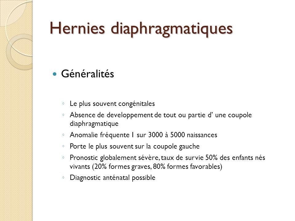 Hernies diaphragmatiques