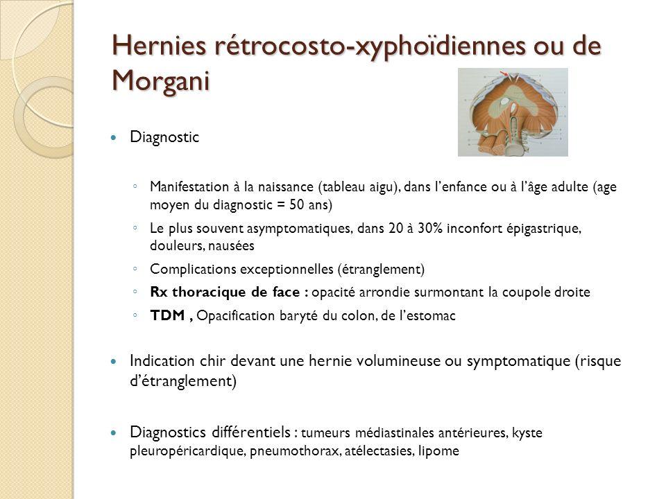 Hernies rétrocosto-xyphoïdiennes ou de Morgani