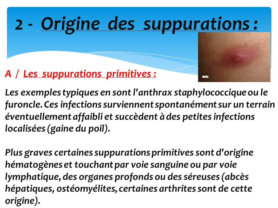 2 - Origine des suppurations :