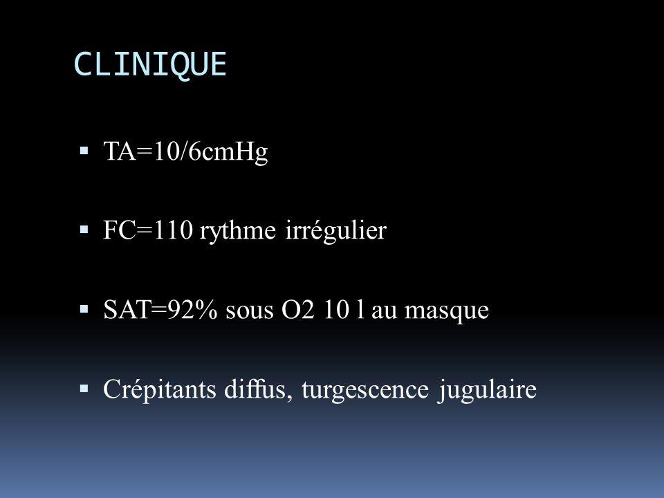 CLINIQUE TA=10/6cmHg FC=110 rythme irrégulier