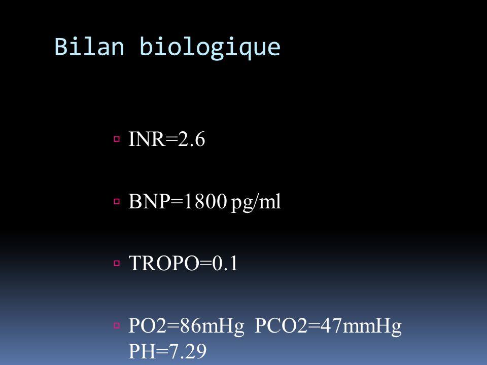 Bilan biologique INR=2.6 BNP=1800 pg/ml TROPO=0.1