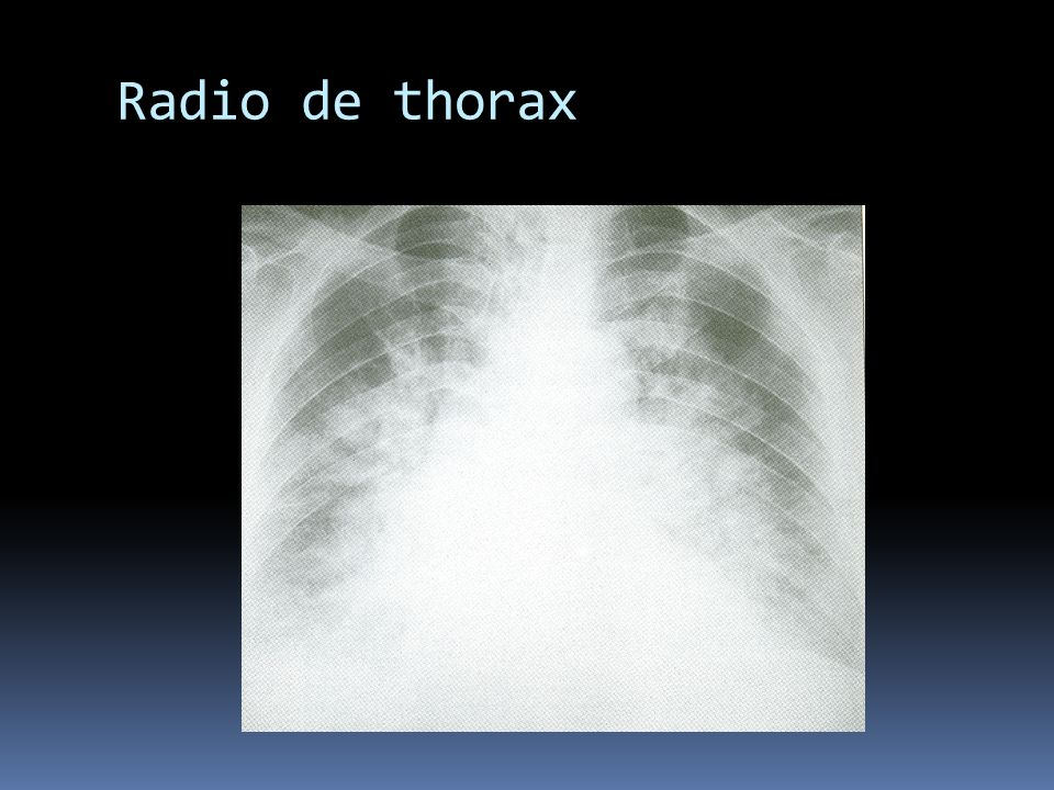 Radio de thorax