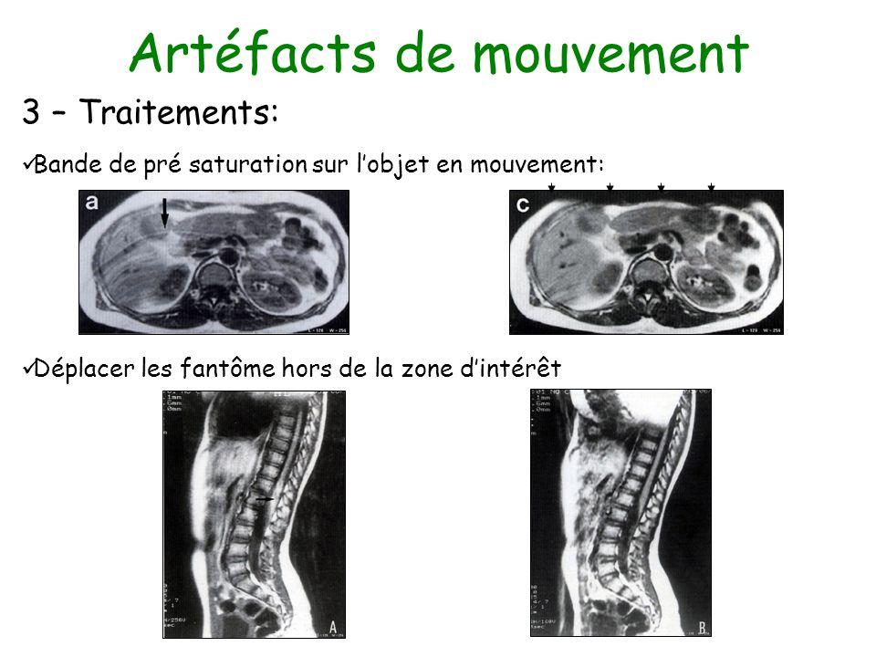 Artéfacts de mouvement