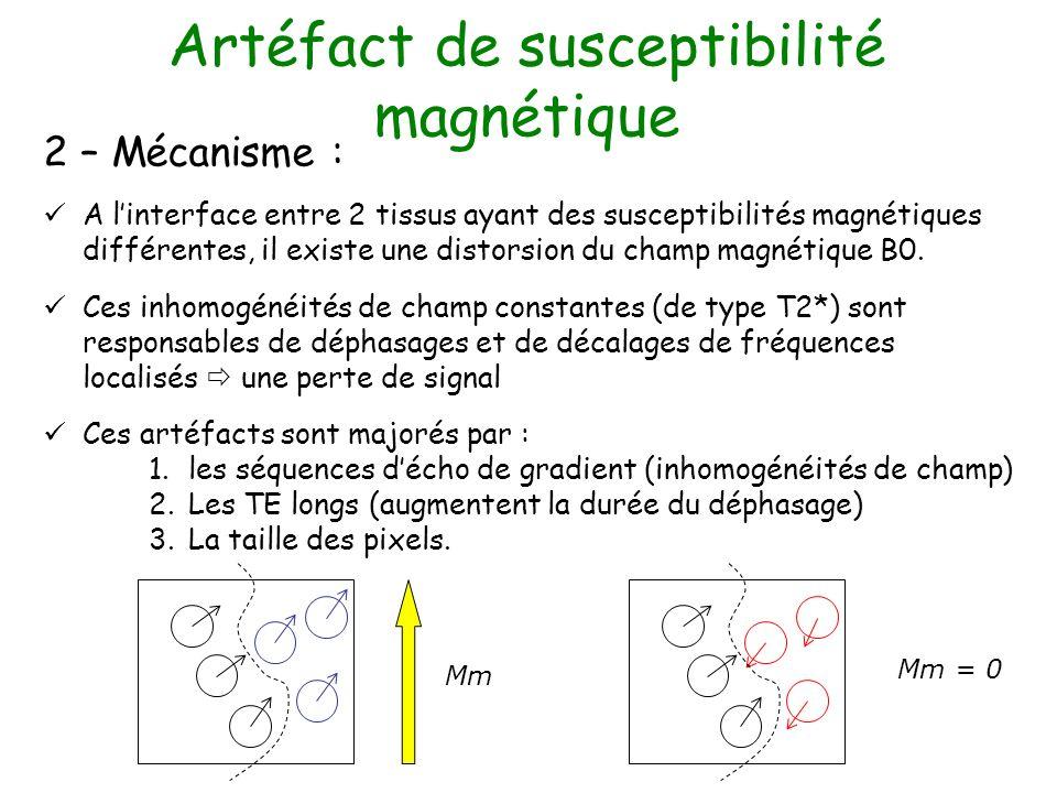 Artéfact de susceptibilité magnétique