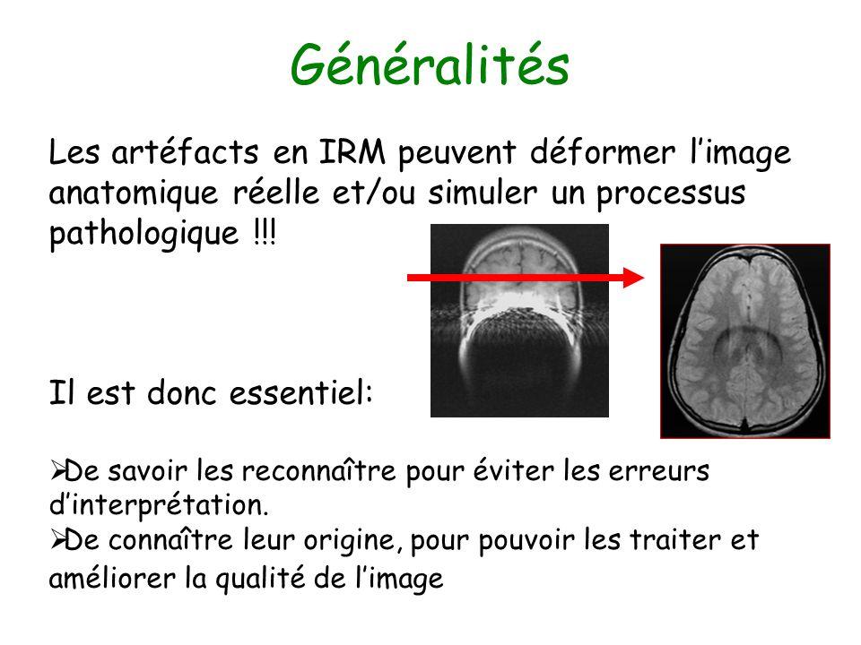 Généralités Les artéfacts en IRM peuvent déformer l'image anatomique réelle et/ou simuler un processus pathologique !!!