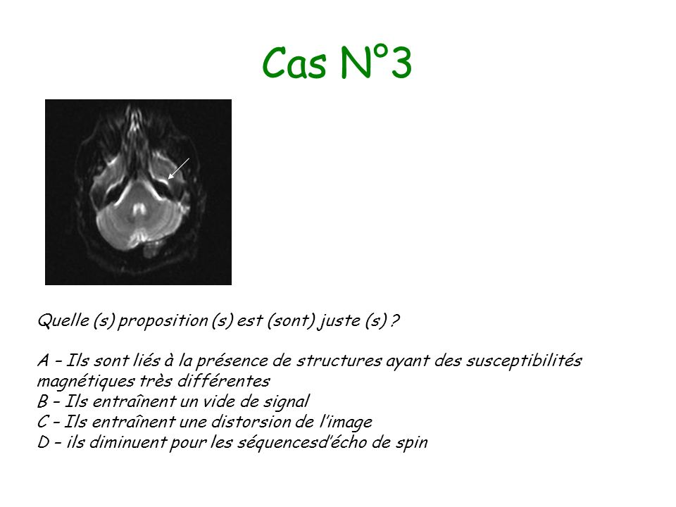 Cas N°3 Quelle (s) proposition (s) est (sont) juste (s)