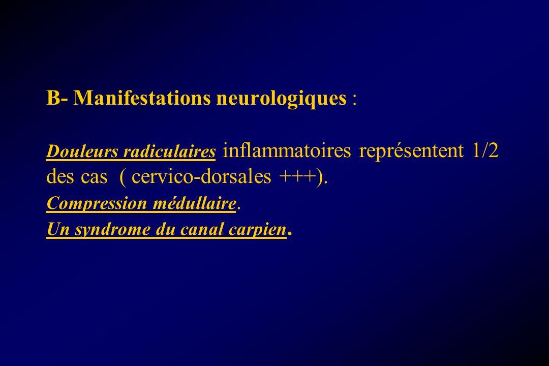 B- Manifestations neurologiques : Douleurs radiculaires inflammatoires représentent 1/2 des cas ( cervico-dorsales +++).