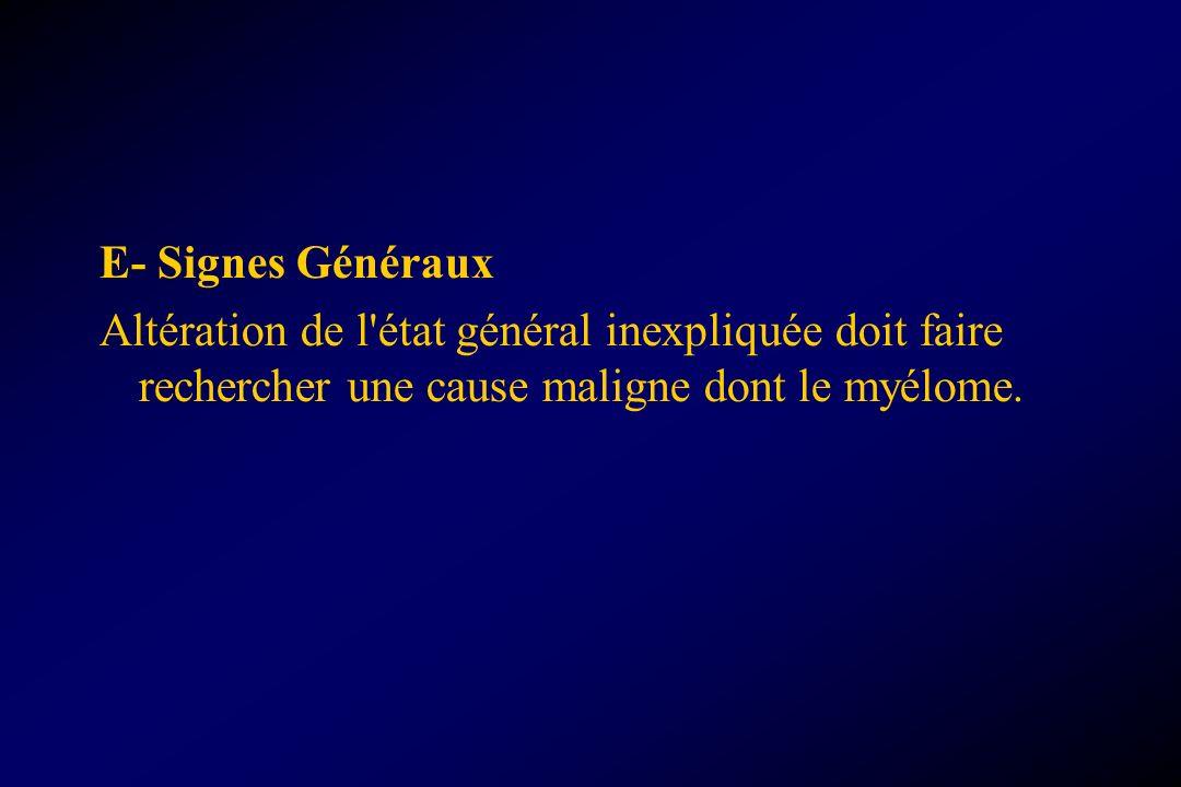E- Signes Généraux Altération de l état général inexpliquée doit faire rechercher une cause maligne dont le myélome.