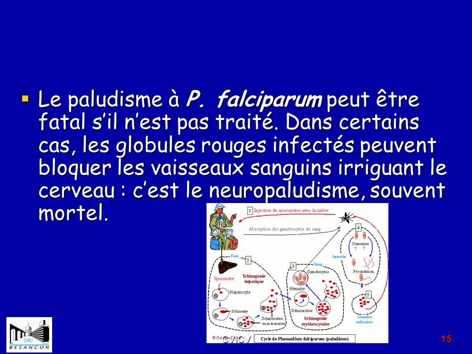 Le paludisme à P. falciparum peut être fatal s'il n'est pas traité