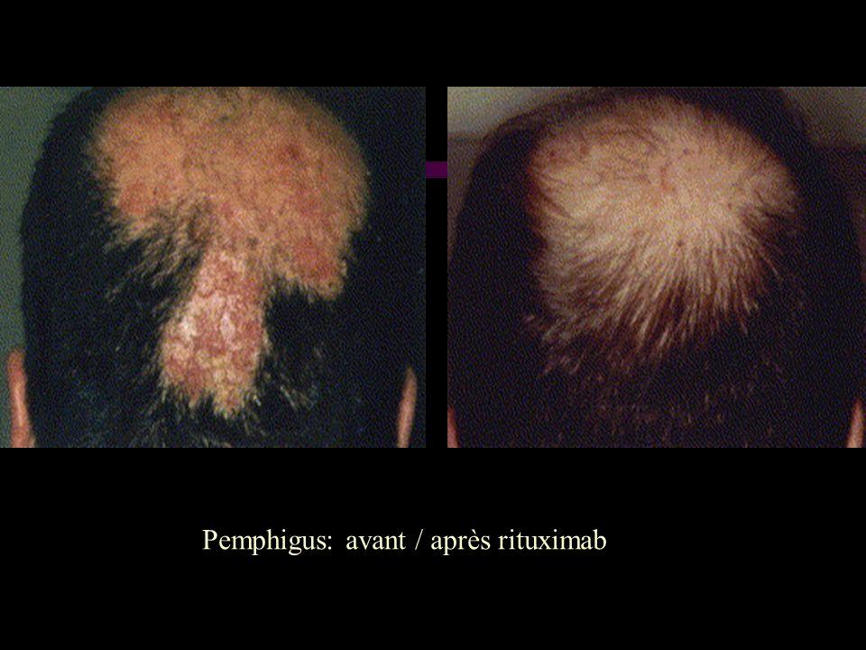 Pemphigus: avant / après rituximab