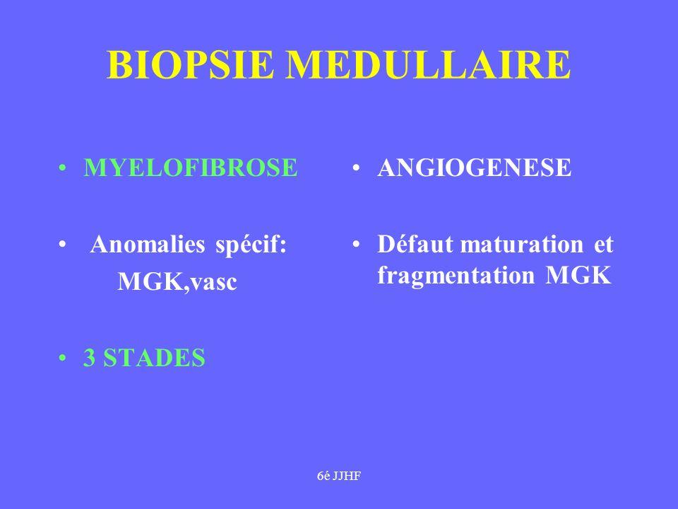BIOPSIE MEDULLAIRE MYELOFIBROSE Anomalies spécif: MGK,vasc 3 STADES