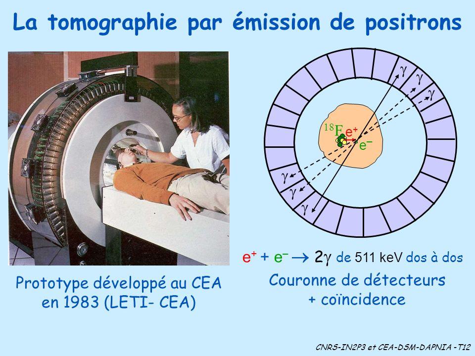 La tomographie par émission de positrons