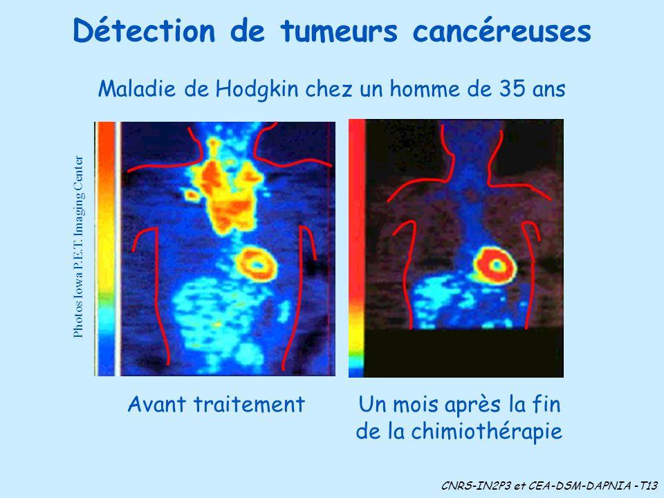 Détection de tumeurs cancéreuses