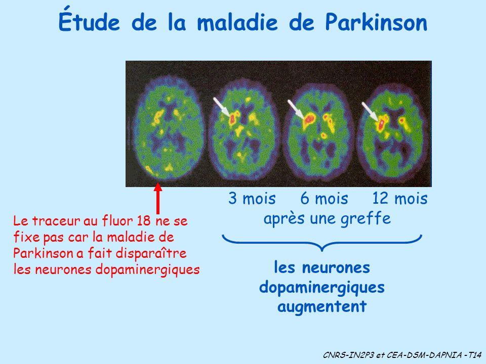 Étude de la maladie de Parkinson