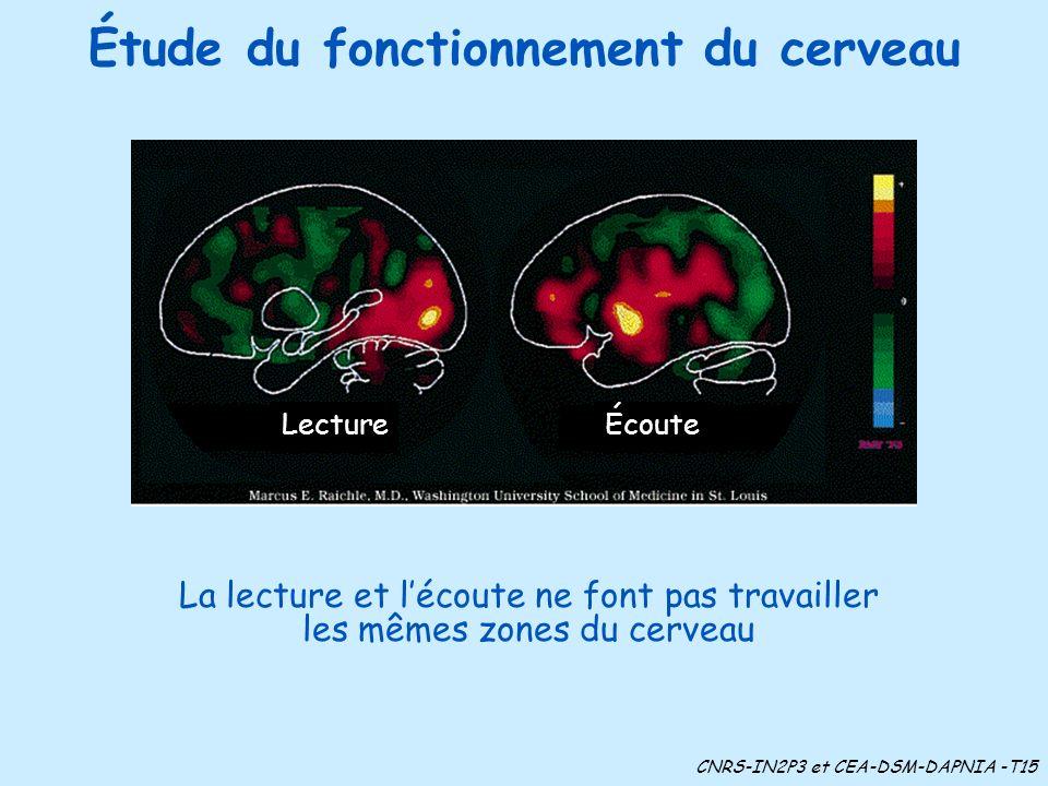 Étude du fonctionnement du cerveau