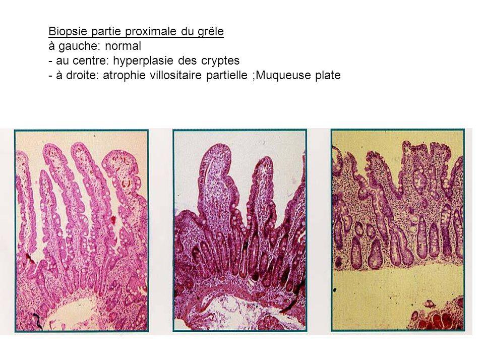 Biopsie partie proximale du grêle