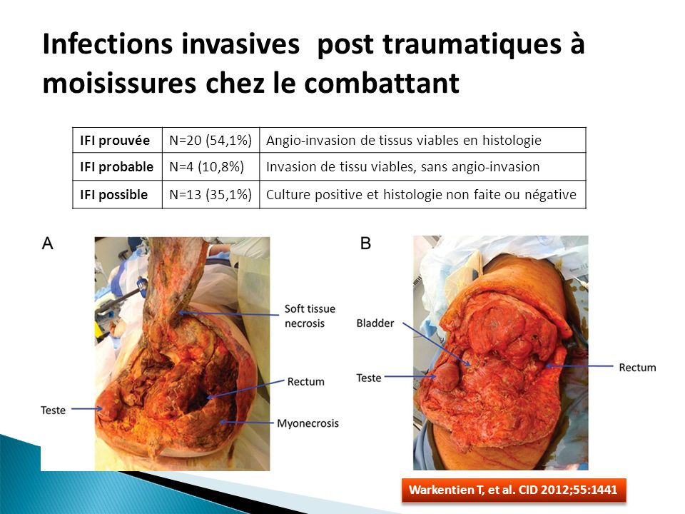 Infections invasives post traumatiques à moisissures chez le combattant
