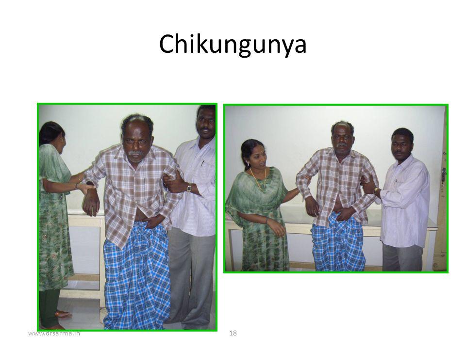 Chikungunya www.drsarma.in