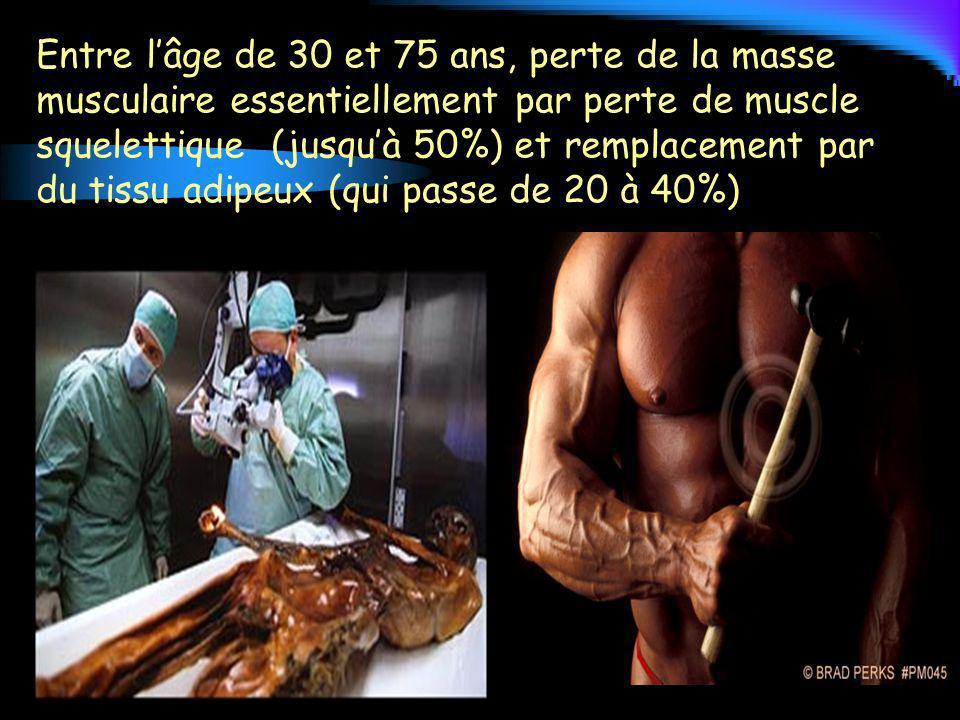 Entre l'âge de 30 et 75 ans, perte de la masse musculaire essentiellement par perte de muscle squelettique (jusqu'à 50%) et remplacement par du tissu adipeux (qui passe de 20 à 40%)
