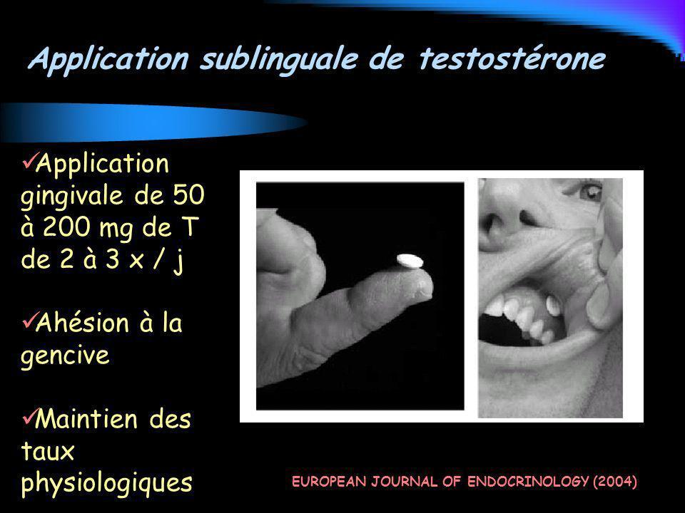 Application sublinguale de testostérone