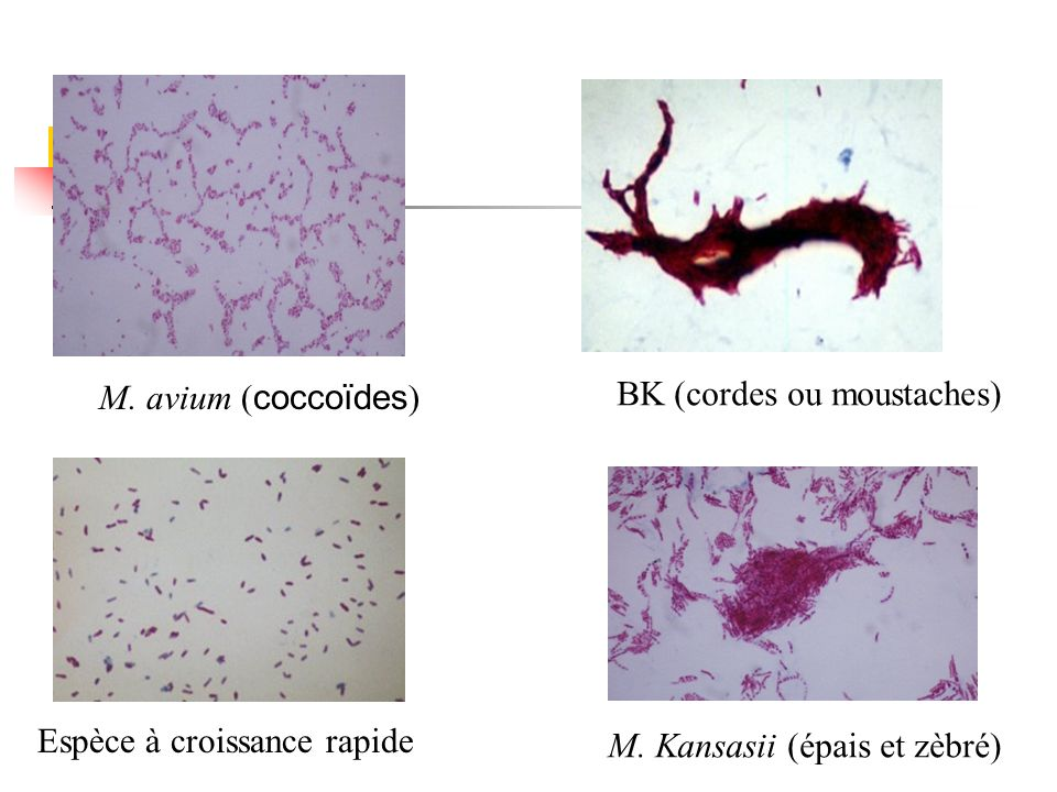 M. avium (coccoïdes) BK (cordes ou moustaches) Espèce à croissance rapide.