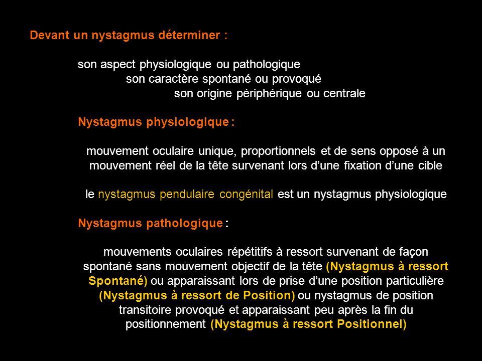 le nystagmus pendulaire congénital est un nystagmus physiologique