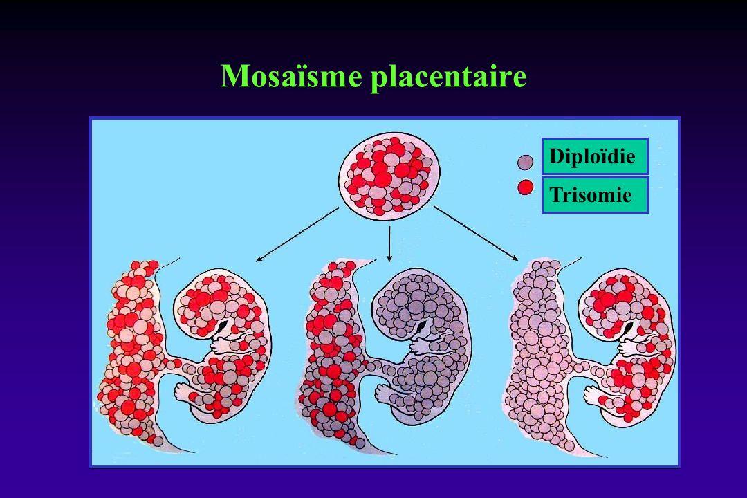 Mosaïsme placentaire Diploïdie Trisomie
